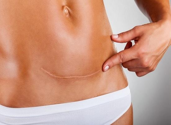 Cicatrici e osteopatia
